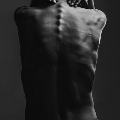 A gerincfájdalom speciális orvosi kezelései